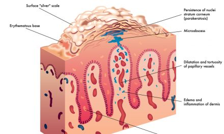 Psoriasis Symptoms, Causes and Treatment