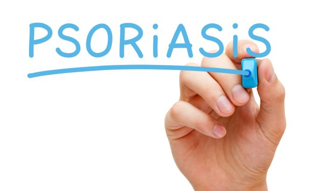 7 Different Types Of Psoriasis