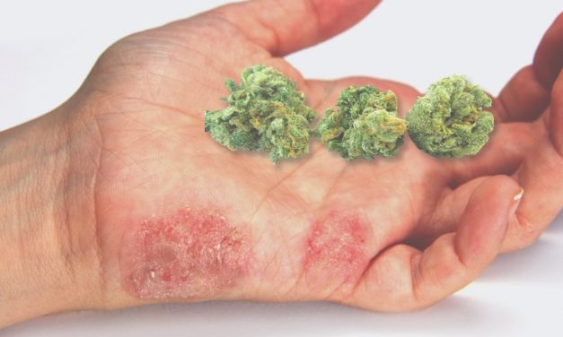 How CBD Oil Can Help To Treat Psoriasis