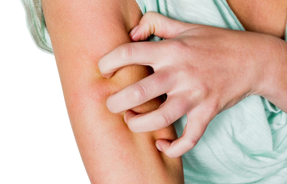Anatomy of an Autoimmune Disease: What is Inverse Psoriasis?