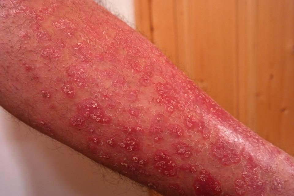 What is Psoriasis, Why It Occurs, and How Marijuana is a Treatment to Psoriasis