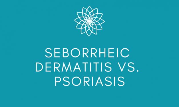 Seborrheic Dermatitis vs. Psoriasis